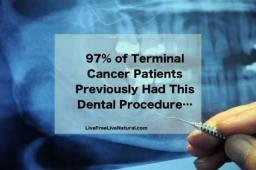 Dental Toxicity