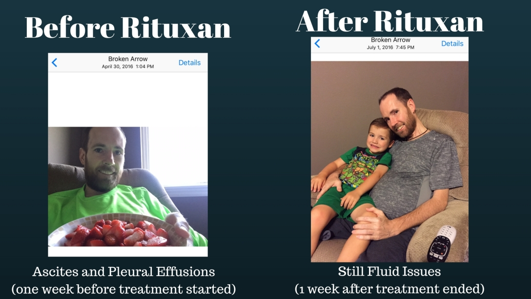 before-rituxan