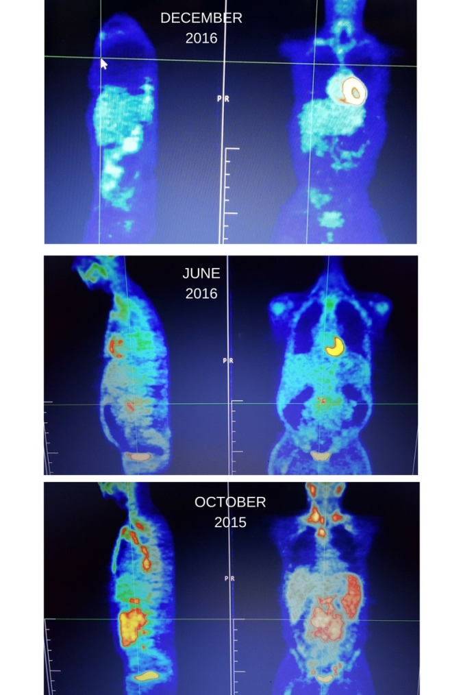 pet-scan-results